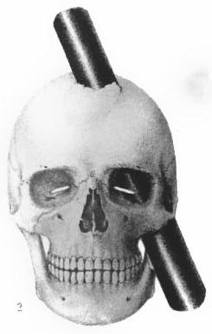 La lesión de Phineas Gage explicada desde los sistemas neuronales top-down & bottom-up